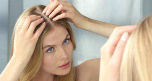 Tratamiento Natural para la pérdida de cabello en las mujeres